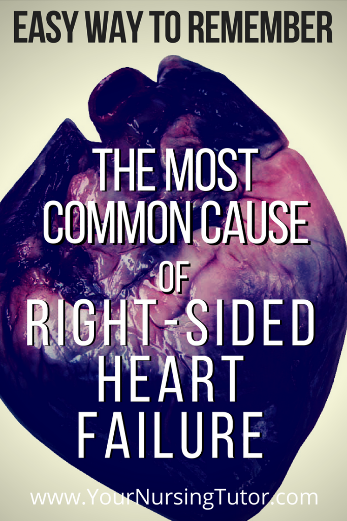 Easy way to remember blood flow through the heart, and how that applies to the causes of right-sided heart failure.